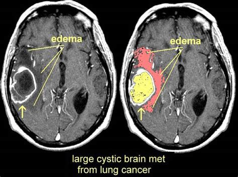 melanoma brain metastasis mri mri images of brain mets
