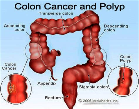 Colon Cancer And Blood In Stool by Colon Cancer Colon Cancer