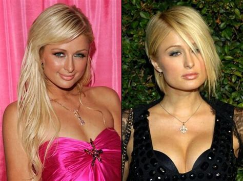 Designer Cosmetic Surgery Craze Newsvine Fashion 3 by Plastic Surgery Before And After