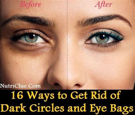 Get Rid Of Eye Bags And Circles Podcast by The World S Catalog Of Ideas