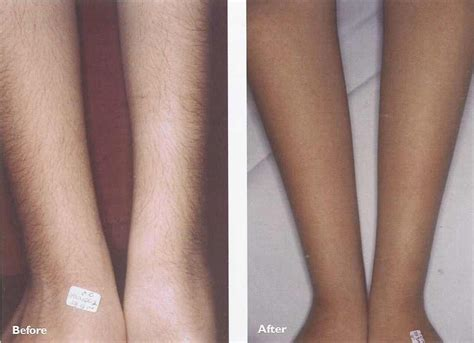 hair removal for legs laser hair removal laser hair removal effectiveness effect information center
