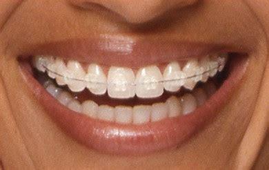 Harga Clear Ortho kiruaorigami braces pendakap gigi