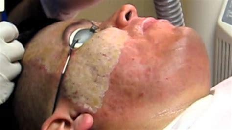 acne scar removal deep erbium laser peel pasadena burbank