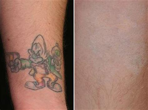 how to be a tattoo removal technician removal in worcester and stoneham ma