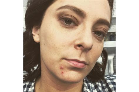 actress with acne breakout stars 17 celebs who celebrate their zits