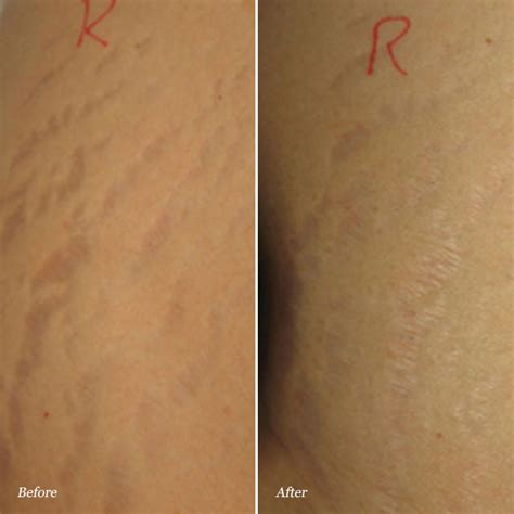marks and knoxville tn stretchmark before and after photos cosmetic dermatology