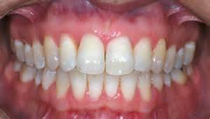 healthy gum color periodontics battle corner house battle