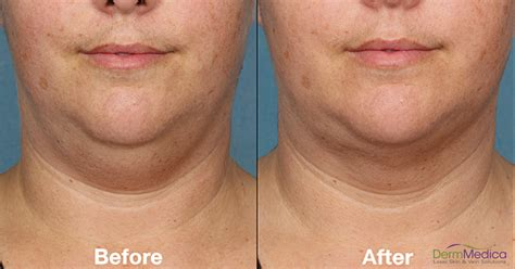 belkyra in kelowna the injectable treatment for double chins