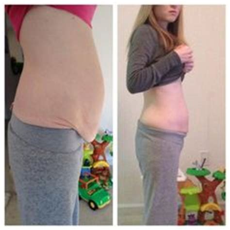 gastric bypass on weight loss surgery