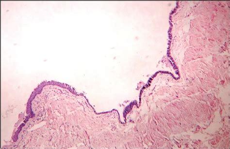 pilonidal cyst histology pathology outlines tailgut cyst