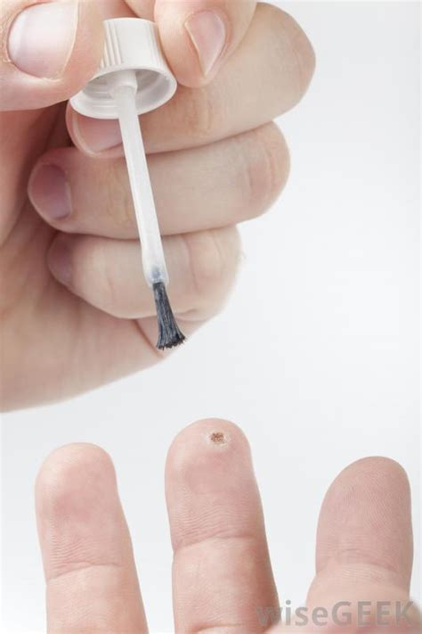 Can You Get Planters Warts On Your Fingers by How Do I Choose The Best Treatment For A Finger Wart