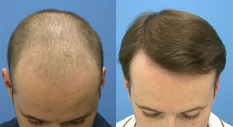 Neograft In Turkey | neograft hair transplant before and after http www