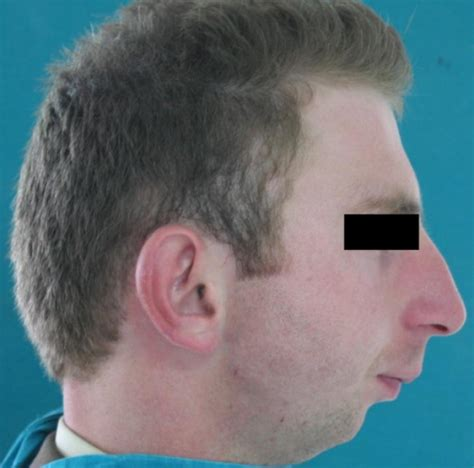 men hairstyles weak chin is a receding chin the worse attribute a man can have