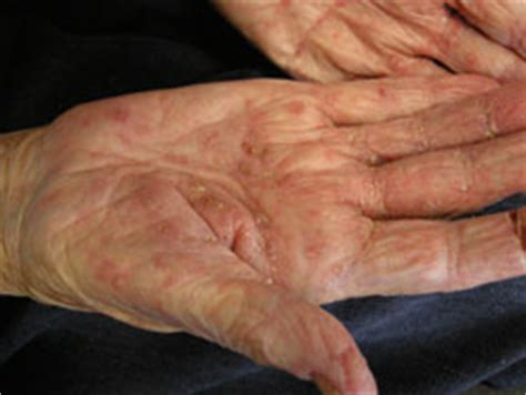 hot shower scabies scabies diagnosis and management bpj 19 february 2009