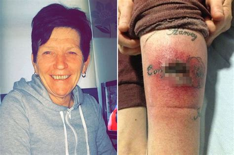 infected tattoo on leg gran left with gruesome gaping hole in leg after tattoo