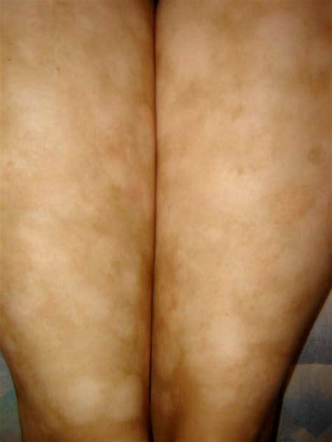 imagenes de michas blancas dermatologo net 187 der georgina pitialba 4