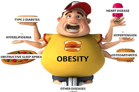weight management and obesity 6 rarely known obesity causes and 3 way to prevent it