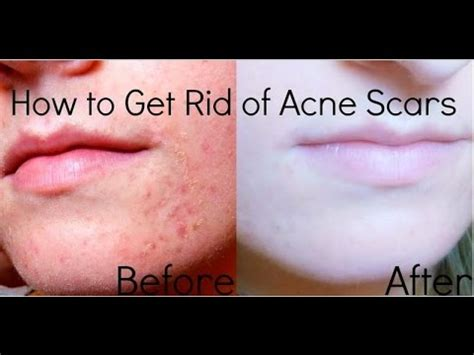 How To Get Rid Of Acne Scars by How To Get Rid Of Acne Scars Fast