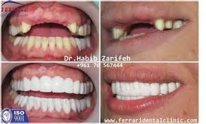 hollywood smile prices hollywood smile cost in lebanon
