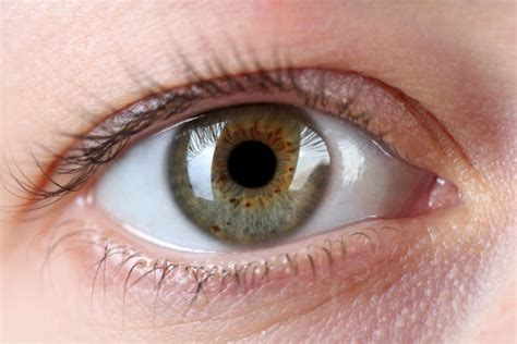 what part of the eye has color eye freckles spots on iris may be caused by sun