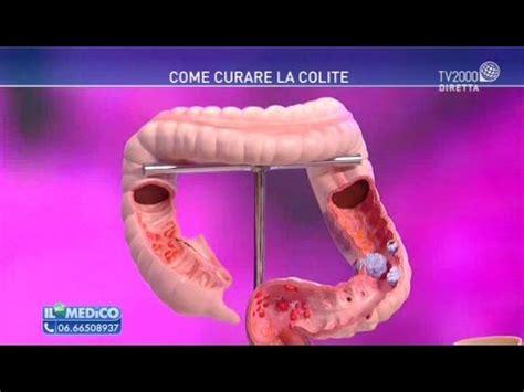 morbo di crohn alimenti consigliati dieta per la colite o intestino irritabile doovi