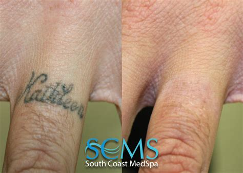 hand tattoo removal 28 removal on finger 696 best images about