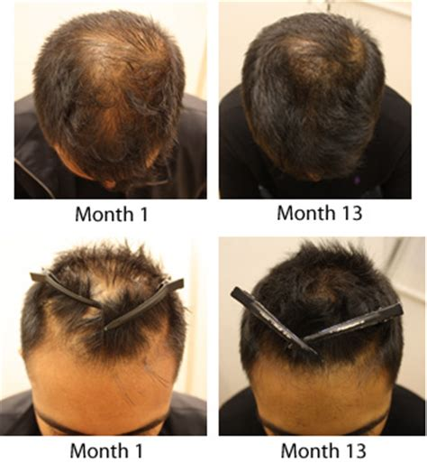 male pattern baldness hair loss rate impressive results excellent service at a fraction of a