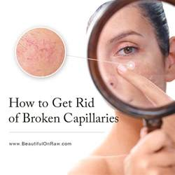 How To Get Rid Of by How To Get Rid Of Broken Capillaries Beautiful On