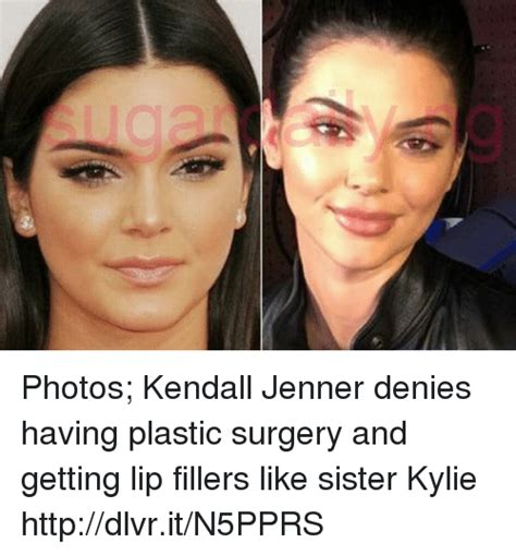 Denies Getting Surgery by Photos Kendall Jenner Denies Plastic Surgery And