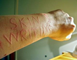 In The Skin Of A Essay by Skin Writing Disease Nature