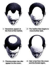 receding definition does a receding hairline mean baldness doctor answers