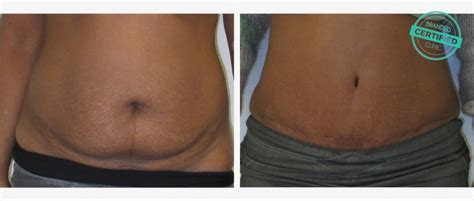 Tummy Tuck To Hit Uk by Tummy Tuck Abroad Abdominoplasty Brandeis Clinic