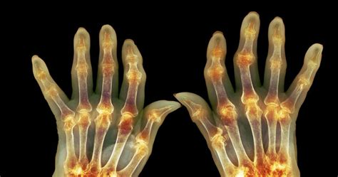 best treatment for rheumatoid arthritis arthritis treatment