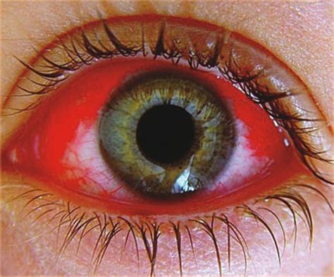 pink eye images pink eye causes symptoms treatment pictures how do