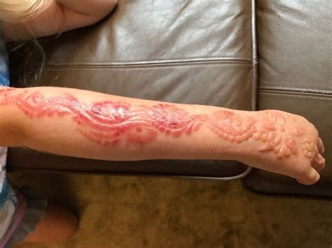 henna tattoo take off little girl scarred for life after her black henna tattoo