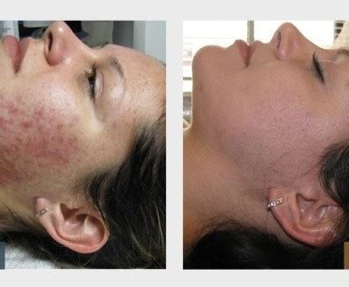 peels treatments oraganica day spa skin specialist