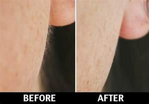 vellus hair peach fuzz hair removal in nyc