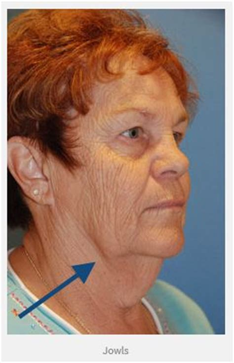 older woman with jowls what would be my best hairstyle jowl d 233 finition what is