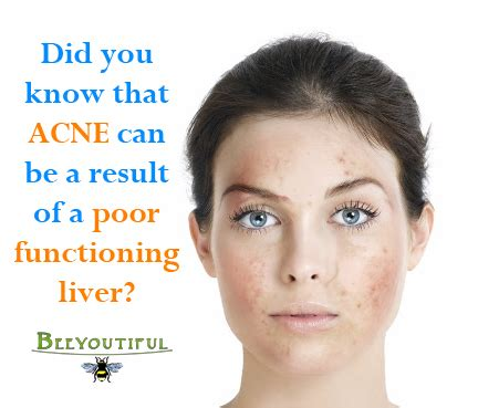 Can Liver Detox Help Acne by Skin Health And Your Liver
