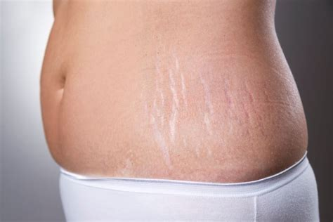 how to get the loss of a how to get rid of stretch marks the ultimate guide