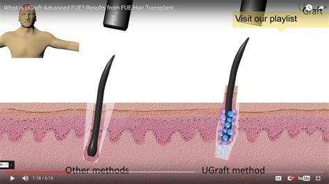 can hot water damage fue hair grafts ugraft advanced follicular unit extraction for body hair