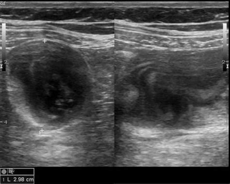 appendiceal mucocele image radiopaediaorg