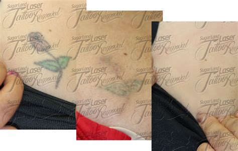 tattoo removal laser before and after laser removal before and after pictures