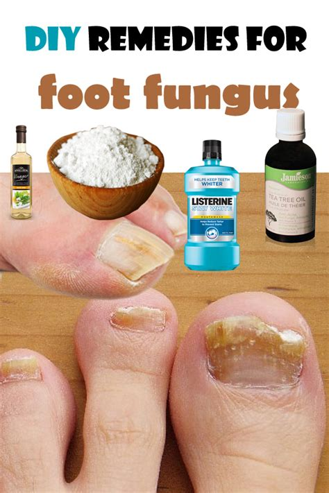 home remedies for foot fungus diy remedies for foot fungus by magazinez net