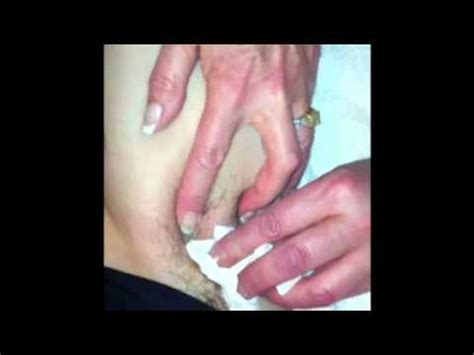 ingrown hair has puss ingrown hair exudes pus bubble
