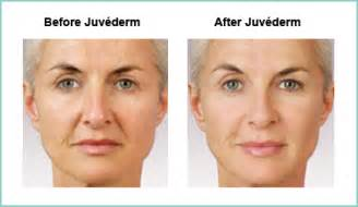 Juvederm injections the natural hyaluronic filler austin