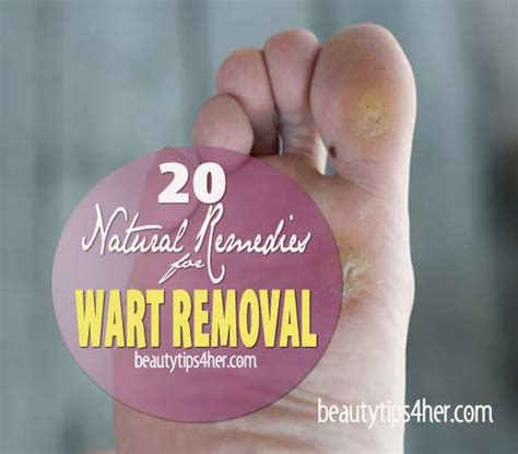 Planters Wart Removal At Home by Average Cost Of Mole Removal Surgery Plantar Wart