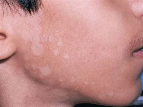 what is white light white patches on skin pictures fungus treat get rid of