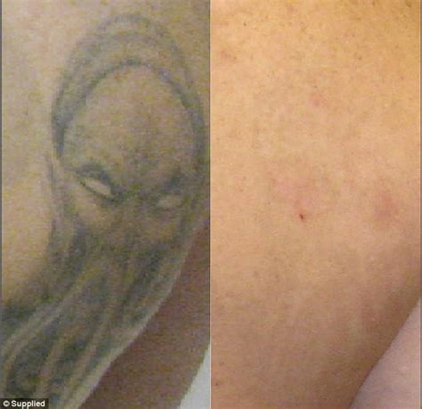 tattoo removal research expert reveals the most commonly removed tattoos daily
