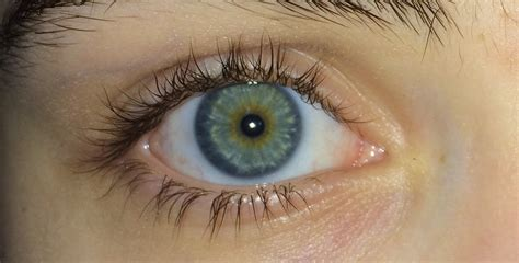 blue green file blue green eyes with central heterochromia jpg